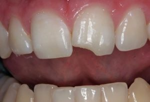 chipped-tooth