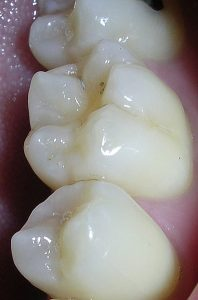 dental-sealants1