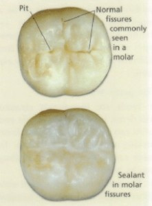 dental-bonding-sealant