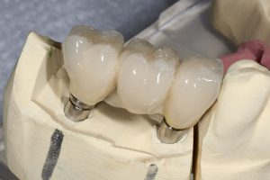 Restoration & Dental Implants