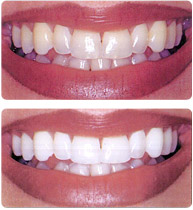 edu_teeth-whitening